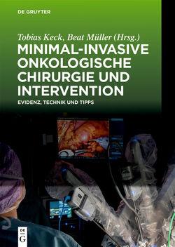 Minimal-invasive Onkologische Chirurgie und Intervention von Keck,  Tobias, Müller,  Beat