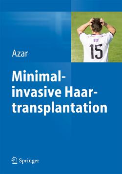 Minimalinvasive Haartransplantation von Azar,  Reza P.