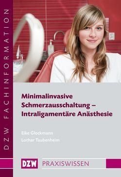 Minimalinvasive Schmerzausschaltung – Intraligamentäre Anästhesie von Glockmann,  Eike, Taubenheim,  Lothar