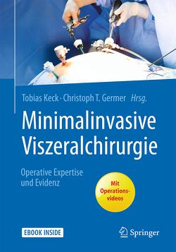 Minimalinvasive Viszeralchirurgie von Germer,  Christoph-T., Keck,  Tobias