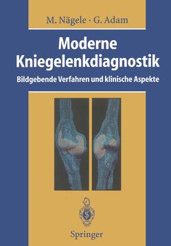 Moderne Kniegelenkdiagnostik von Adam,  Gerhard, Bloem,  J.L., Günther,  R.W., Hansis,  M., Helbich,  T., Hotzeerger,  L.A., Kainberger,  F.M., Kramer,  J, Lehner,  K., Mohr,  E, Nägele,  M., Nägele,  Matthias, Otto,  H., Overbeck,  B., Rüther,  W., Scheurecker,  A., Schneider,  T., Steuer,  K., Vahlensieck,  M., Woude,  H.J. van der, Wülker,  N.