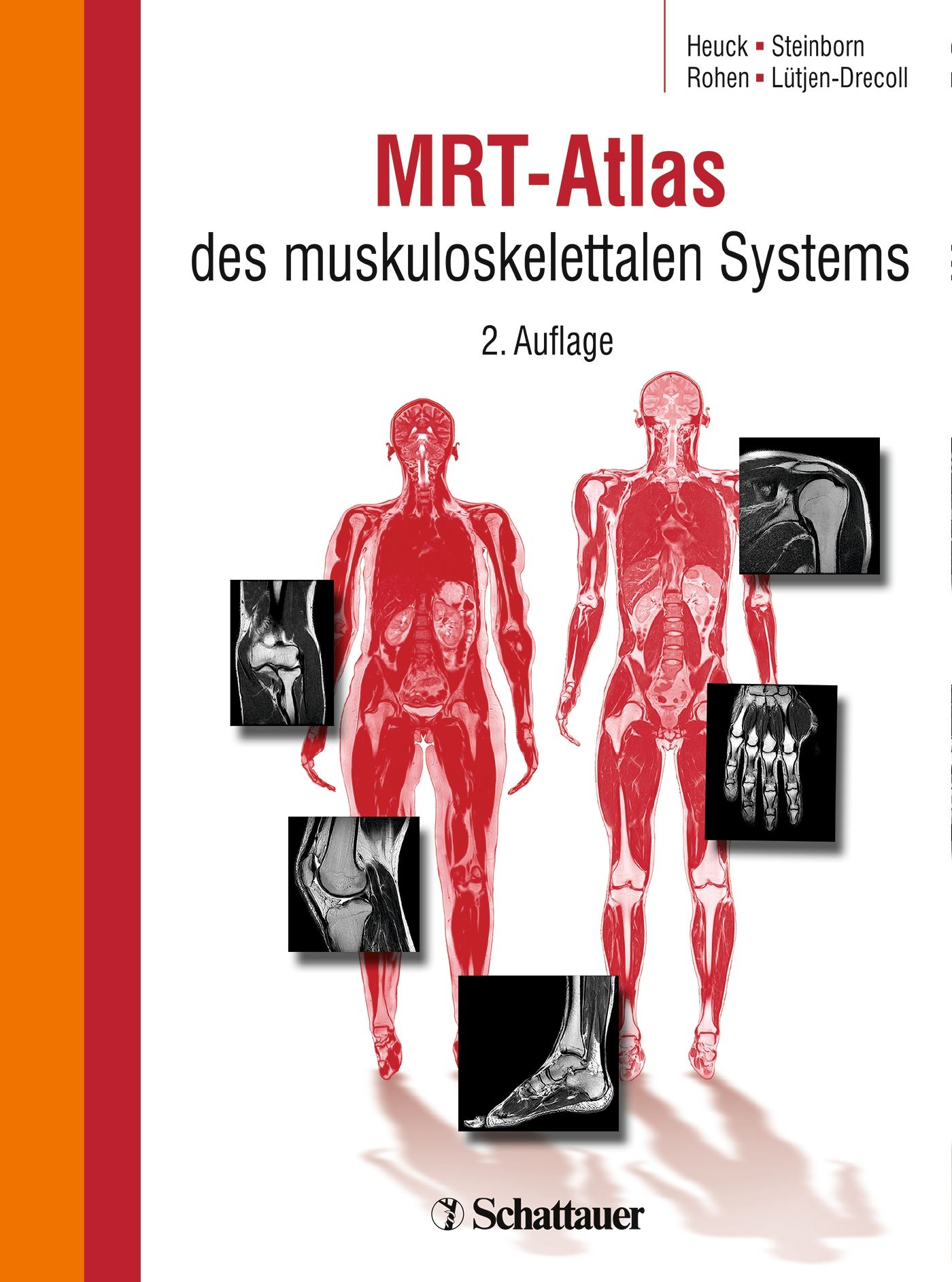 MRT-Atlas des muskuloskelettalen Systems von Heuck, Andreas, Lütjen-D