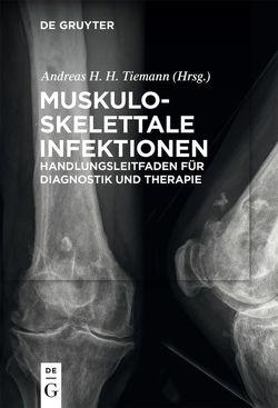 Muskuloskelettale Infektionen von Braunschweig,  Rainer, Frommelt,  Lars, Tiemann,  Andreas Heinrich