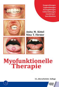 Myofunktionelle Therapie von Förster,  Nina T., Kittel,  Anita