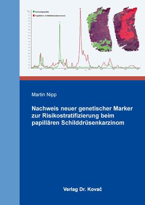 Nachweis neuer genetischer Marker zur Risikostratifizierung beim papillären Schilddrüsenkarzinom von Nipp, Martin