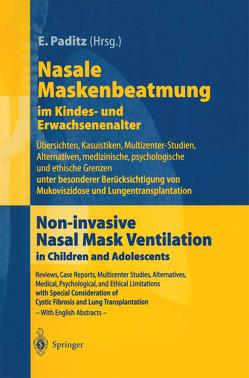 Nasale Maskenbeatmung im Kindes- und Erwachsenenalter von Criee,  C.-P., Dahlheim,  M., Dinger,  J., Fichter,  J., Karg,  O., Lindemann,  H., Paditz,  E., Paul,  K, Paul,  K.-D., Schönhofer,  B., Ullrich,  G., Wagner,  F., Wiebel,  M., Wiebicke,  W., Wunderlich,  P.