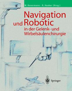 Navigation und Robotic in der Gelenk- und Wirbelsäulenchirurgie von Haaker,  Rolf, Konermann,  Werner