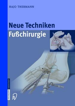 Neue Techniken Fusschirurgie von Thermann,  Hajo