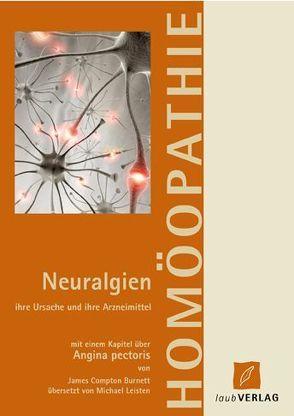 Neuralgien ihre Ursache und ihre Arzneimittel