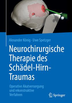 Neurochirurgische Therapie des Schädel-Hirn-Traumas von Koenig,  Alexander, Spetzger,  Uwe