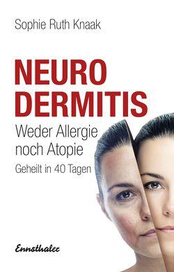 Neurodermitis von Knaak,  Sophie Ruth