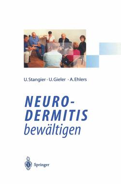 Neurodermitis bewältigen von Ehlers,  Anke, Gieler,  Uwe, Stangier,  Ulrich