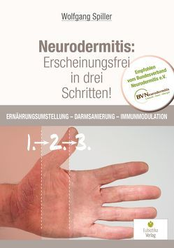 Neurodermitis: Erscheinungsfrei in drei Schritten! von Wolfgang,  Spiller