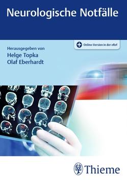 Neurologische Notfälle von Eberhardt,  Olaf, Topka,  Helge Roland