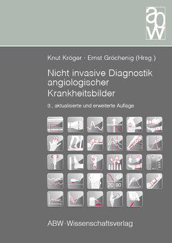 Nicht invasive Diagnostik angiologischer Krankheitsbilder von Gröchenig,  Ernst, Kröger,  Knut