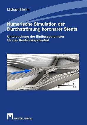 Numerische Simulation der Durchströmung koronarer Stents von Stiehm,  Michael
