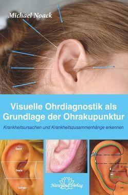 Visuelle Ohrdiagnostik als Grundlage der Ohrakupunktur von Noack,  Michael