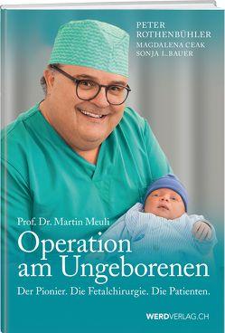 Martin Meuli – Operation am Ungeborenen von Bauer,  Sonja L., Ceak,  Magdalena, Rothenbühler,  Peter