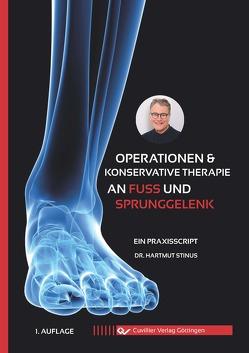 Operationen & konservative Therapie an Fuß und Sprunggelenk von Stinus,  Hartmut