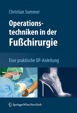 Operationstechniken in der Fußchirurgie von Sommer,  Christian
