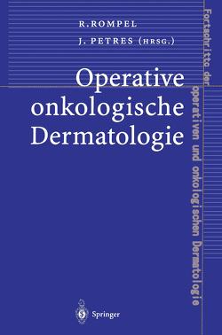 Operative onkologische Dermatologie von Petres,  Johannes, Rompel,  Rainer