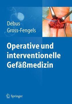 Operative und interventionelle Gefäßmedizin von Debus,  Eike Sebastian, Gross-Fengels,  Walter