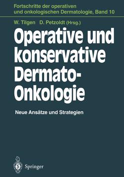 Operative und konservative Dermato-Onkologie von Hartschuh,  W., Kohl,  P.K., Krahl,  D., Petzoldt,  Detlef, Tilgen,  Wolfgang