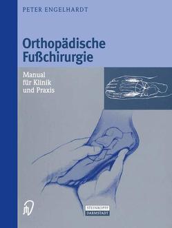 Orthopädische Fußchirurgie von Engelhardt,  Peter