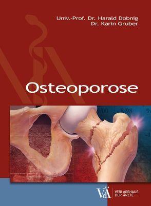 Osteoporose von Dobnig,  Harald, Gruber,  Karin