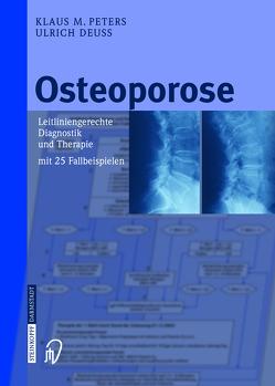 Osteoporose von Deuß,  Ulrich, Peters,  Klaus M.