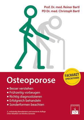 Osteoporose von Bartl,  Christoph, Bartl,  Reiner, Gewecke,  Martina