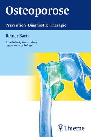 Osteoporose von Bartl,  Reiner