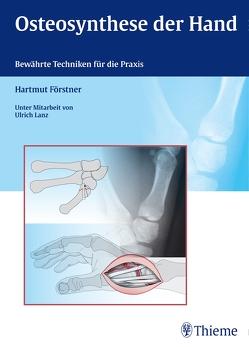 Osteosynthese der Hand von Förstner,  Hartmut