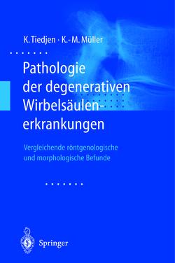 Pathologie der degenerativen Wirbelsäulenerkrankungen von Müller,  Klaus-Michael, Tiedjen,  Kay