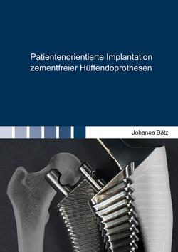 Patientenorientierte Implantation zementfreier Hüftendoprothesen von Bätz,  Johanna