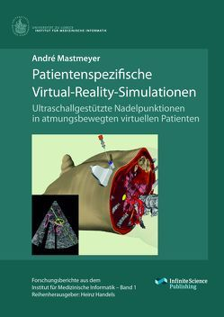 Patientenspezifische Virtual-Reality-Simulationen von Mastmeyer,  André