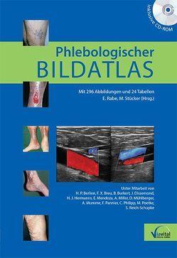 Phlebologischer Bildatlas von Rabe,  Eberhard, Stücker,  Markus