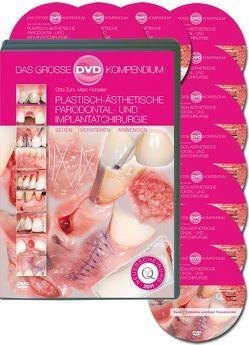 Plastisch-Ästhetische Parodontal- und Implantatchirurgie von Hürzeler,  Marc, Zuhr,  Otto