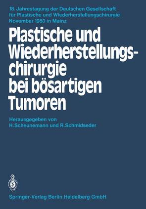 Plastische und Wiederherstellungschirurgie bei bösartigen Tumoren von Scheunemann,  H., Schmidseder,  R.