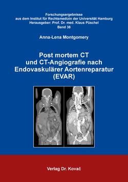 Post mortem CT und CT-Angiografie nach Endovaskulärer Aortenreparatur (EVAR) von Montgomery,  Anna-Lena