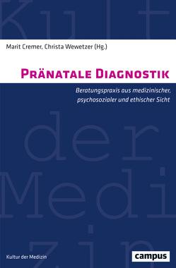 Pränatale Diagnostik von Cremer,  Marit, Friese,  Susanne, Hufendiek,  Sabine, Kriete-Samklu,  Gerlinde, Luttkus,  Andreas, Moczarski,  Ingrid, Möritz,  Rolf-Peter, Wewetzer,  Christa