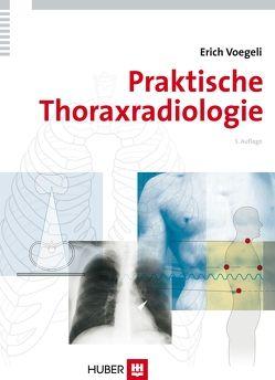 Praktische Thoraxradiologie von Voegeli,  Erich