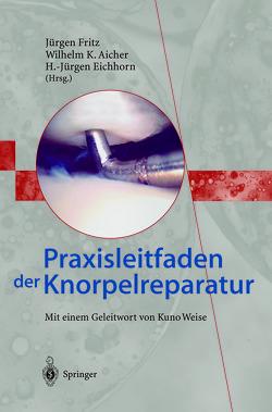 Praxisleitfaden der Knorpelreparatur von Aicher,  Wilhelm K., Eichhorn,  H.-Jürgen, Fritz,  Jürgen