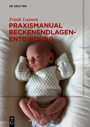 Praxismanual Beckenendlagenentbindung von Louwen,  Frank