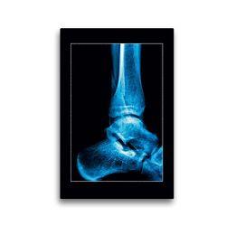Premium Textil-Leinwand 30 x 45 cm Hoch-Format Fußgelenk | Wandbild, HD-Bild auf Keilrahmen, Fertigbild auf hochwertigem Vlies, Leinwanddruck von Georg Hanf