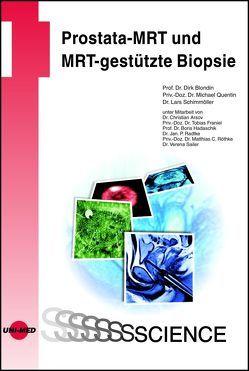 Prostata-MRT und MRT-gestützte Biopsie von Blondin,  Dirk, Quentin,  Michael, Schimmöller,  Lars
