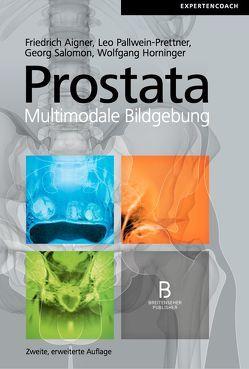 Prostata – Multimodale Bildgebung, 2. erweiterte Auflage von Aigner,  Friedrich, Horninger,  Wolfgang, Pallwein-Prettner,  Leo, Salomon,  Georg