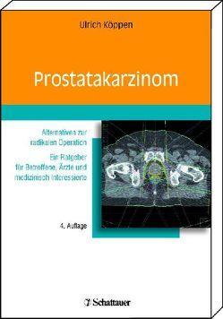 Prostatakarzinom von Köppen,  Ulrich R.