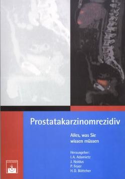Prostatakarzinomrezidiv von Adamietz,  I A, Böttcher,  H D, Feyer,  P, Noldus,  J