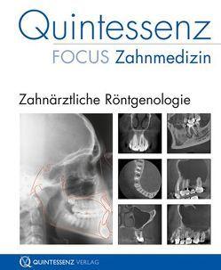 Quintessenz Focus Zahnmedizin: Zahnärztliche Röntgenologie von Schulze,  Dirk